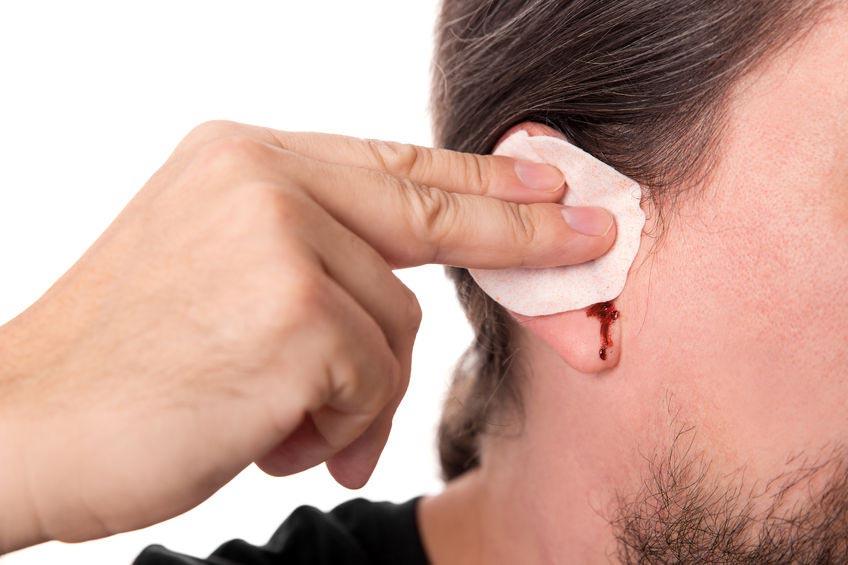 Почему идет кровь из уха при давлении - Здоровье ушей