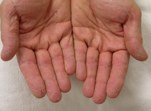 Шелушение кожи на ладонях рук: возможные причины и лечение