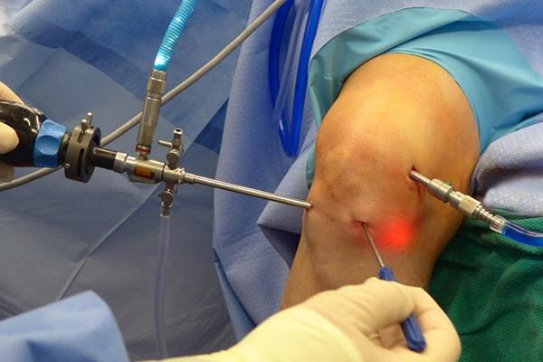 вывих коленного сустава и опухоль