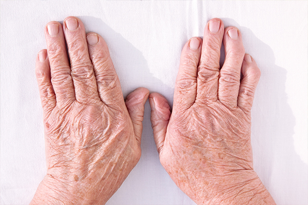 Парацетамол при лечении артроза