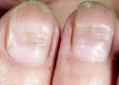 Причины возникновения борозд на ногтях и их лечение
