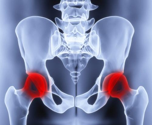 Протезирование тазобедренного сустава противопоказания анатомия связок и суставов нижних конечностей человека
