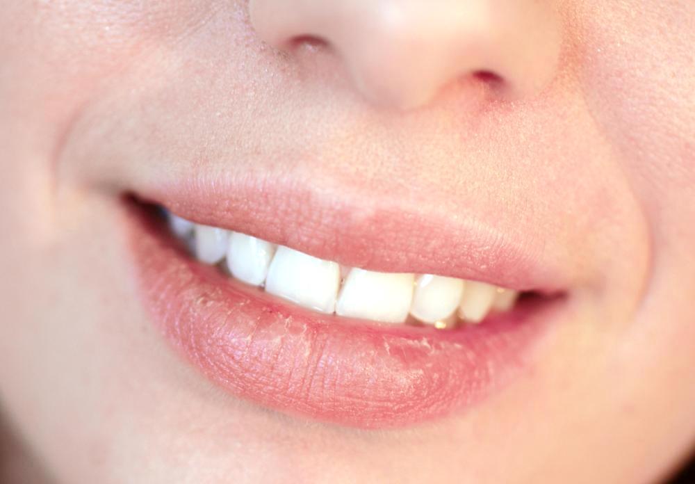 Внешние признаки болезней: белые губы