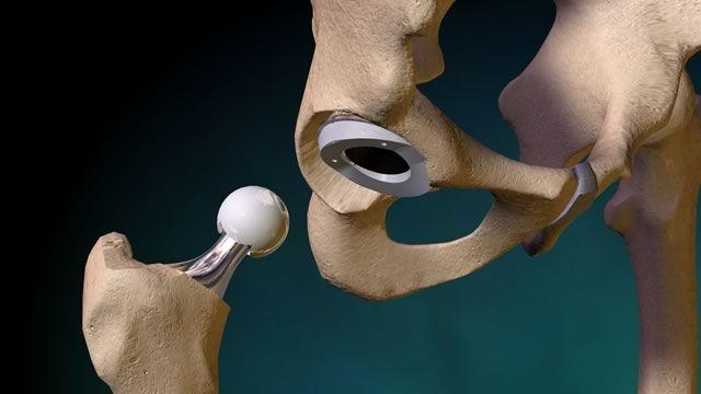Возврат стоимости тазобедренного сустава болит локоть и немеет палец