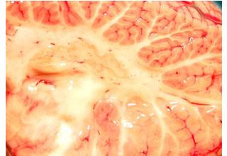 Инфаркт мозжечка симптомы и последствия
