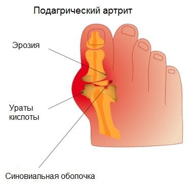 Подагрический артрит - likarni.com