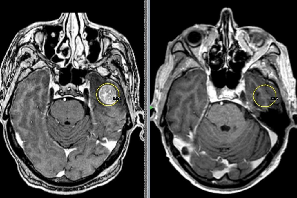 снимки мрт головного мозга здорового человека