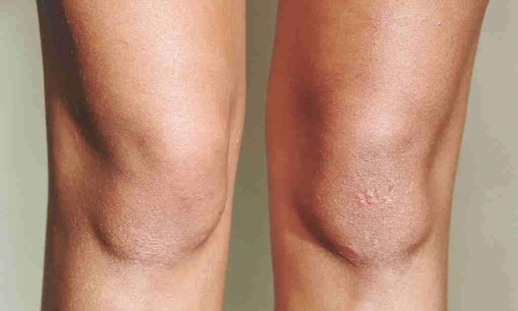Ороговела кожа на колене